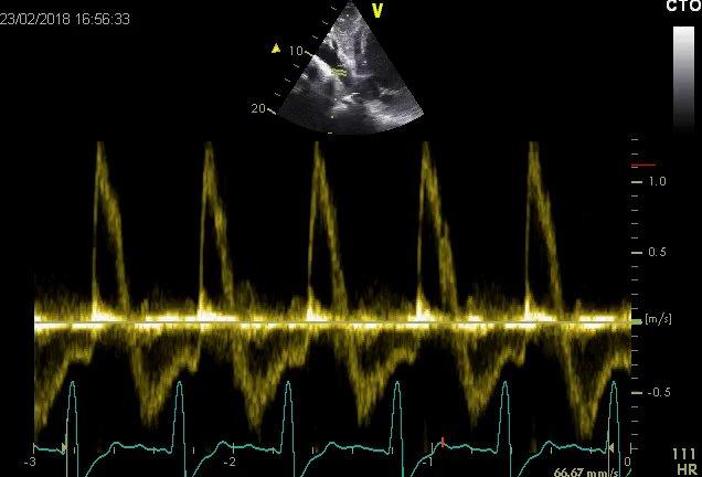 Descending aorta flow reversal (severe AR)