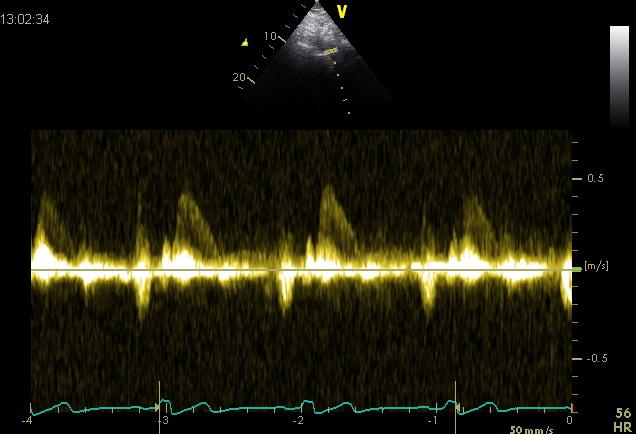 Descending aorta normal flow