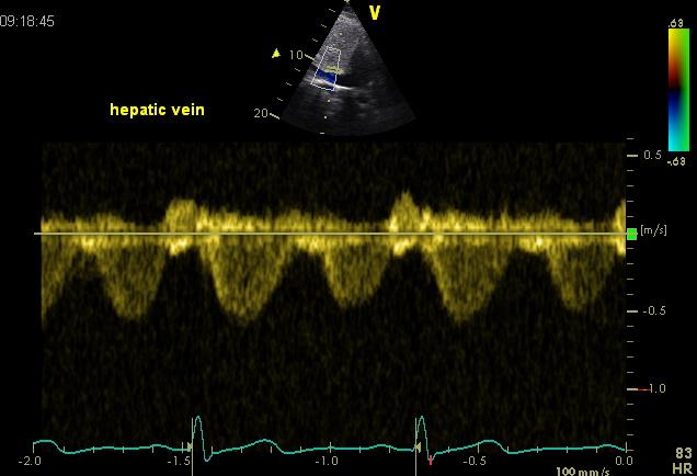 Hepatic vein flow normal