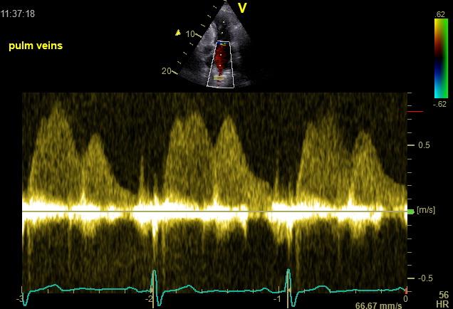 Pulmonary vein normal flow