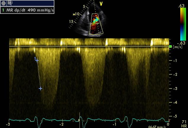 MR dP/dT decreased LV function