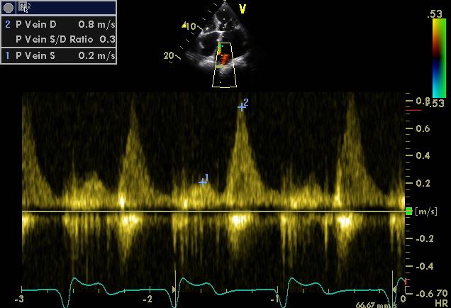 Pulmonary vein decreased systolic flow