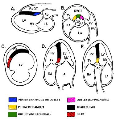 ventricle septum defect